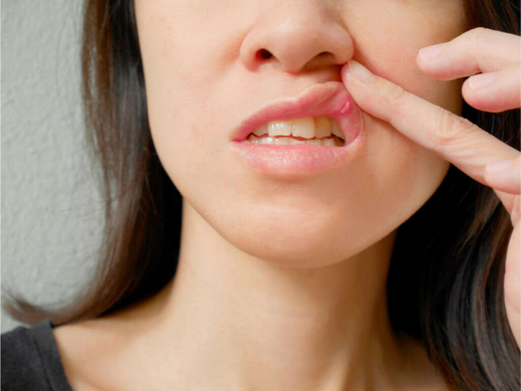 Causes Of Mouth Ulcers