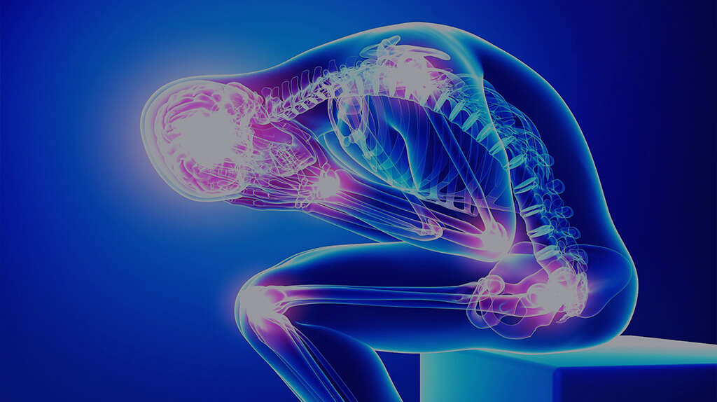 Fibromyalgia Symptoms