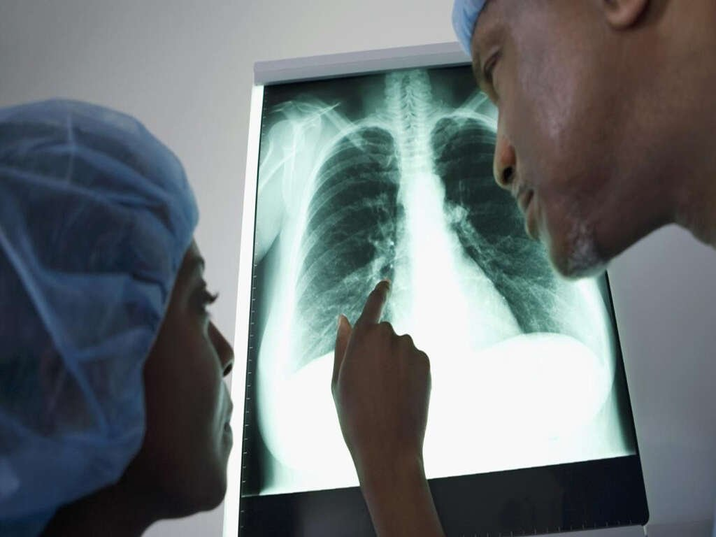 10 Causes Of Fluid In The Lungs - 10FAQ