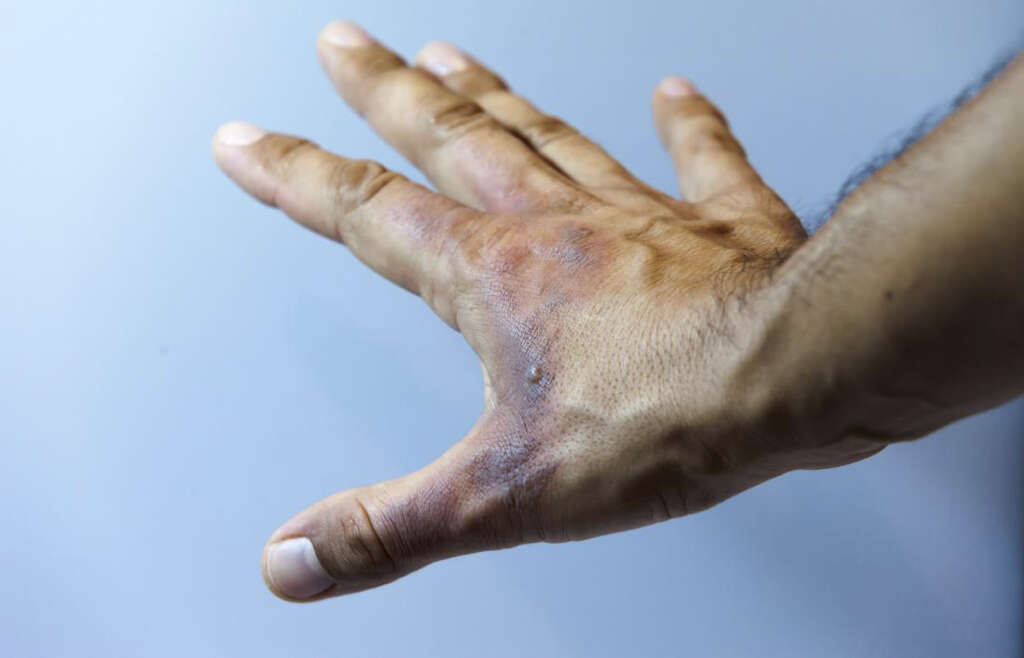What Is Anhidrosis?